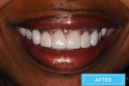 veneers before after corona orthodontics