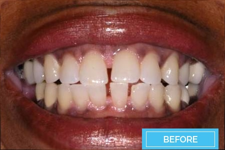 veneers before after 2 corona orthodontics