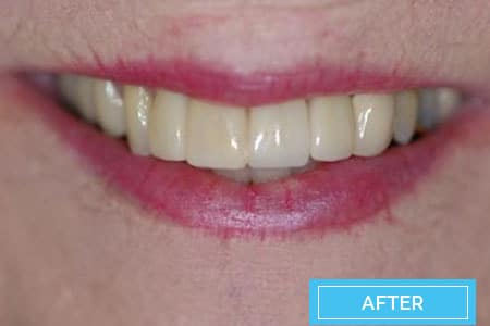 veneers-before-after-corona