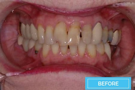 veneers-before-corona
